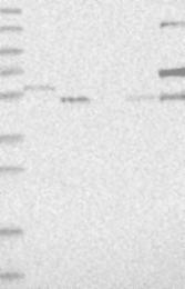 NBP1-86748 - FAM65B