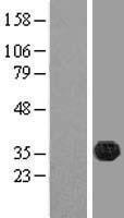 NBL1-10557 - FAM70B Lysate