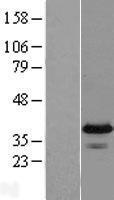 NBL1-10565 - FAM76A Lysate