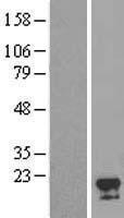 NBL1-10583 - FAM96A Lysate