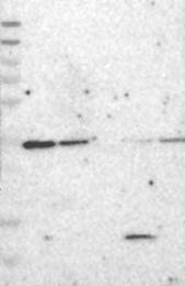 NBP1-84758 - FANCL