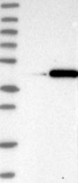 NBP1-86258 - FANK1
