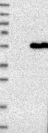 NBP1-85188 - FARS2