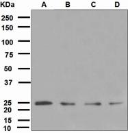 NBP1-95481 - Ubiquitin D (UBD)