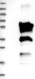 NBP1-86665 - FBLIM1