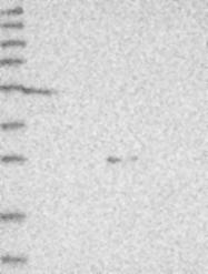 NBP1-84727 - FBXL4