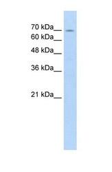 NBP1-54918 - FBXL5