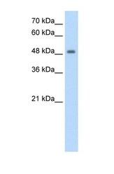 NBP1-55053 - FBXL7