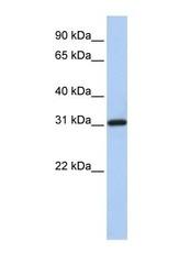 NBP1-57614 - FBXO16