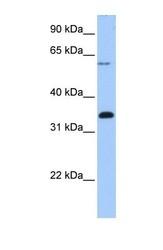 NBP1-57615 - FBXO16