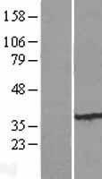 NBL1-10625 - FBXO25 Lysate