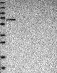 NBP1-83916 - FBXO31