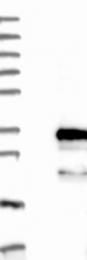 NBP1-84728 - FBXO44