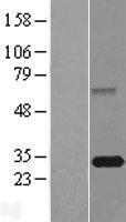 NBL1-10638 - FBXO44 Lysate