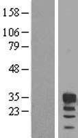 NBL1-10640 - FBXO6 Lysate