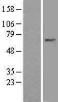 NBL1-10644 - FBXW11 Lysate
