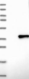 NBP1-89127 - FCGRT / FCRN