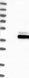 NBP1-89128 - FCGRT / FCRN