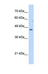 NBP1-54855 - Squalene synthetase