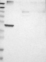 NBP1-89560 - Squalene synthetase