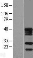 NBL1-10671 - FDX1L Lysate