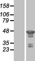 NBL1-10676 - FEN1 Lysate