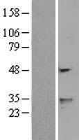 NBL1-17788 - FENS1 Lysate