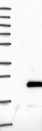 NBP1-86256 - Zygin-1