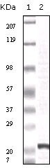 NBP1-47359 - FGF basic / FGF2
