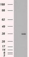 NBP1-47749 - FGF basic / FGF2