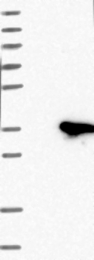 NBP1-84689 - FGF13