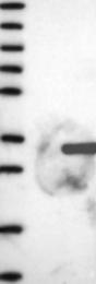 NBP1-81341 - FGFBP2