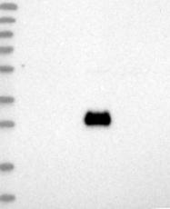 NBP1-88670 - CD332 / FGFR-2