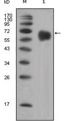 NBP1-47435 - CD334 / FGFR4