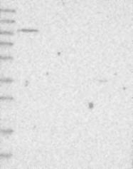 NBP1-84585 - CD334 / FGFR4