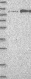 NBP1-84587 - CD334 / FGFR4