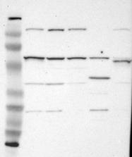 NBP1-85677 - FGR / SRC2