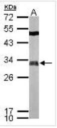 NBP1-33603 - FHL2 / SLIM3