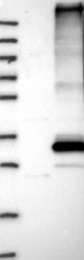 NBP1-84679 - Fat-inducing protein 1 / FIT1