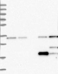 NBP1-84678 - FKBP11 / FKBP19