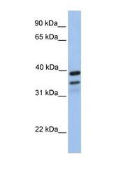 NBP1-59018 - FKBP8 / FKBP38