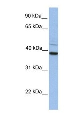 NBP1-59019 - FKBP8 / FKBP38
