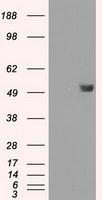 NBP1-47755 - FKBP5 / FKBP51