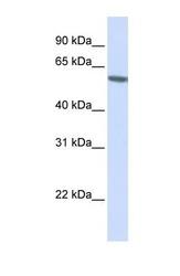 NBP1-54619 - FKBP5 / FKBP51