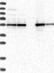 NBP1-84676 - FKBP5 / FKBP51