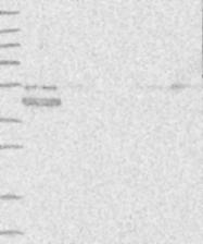 NBP1-84751 - FAD synthetase