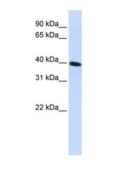 NBP1-62516 - CARKD