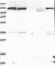NBP1-87911 - UBA6 / MOP4