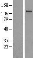 NBL1-17501 - FLJ10808 Lysate