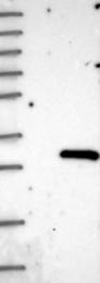 NBP1-91904 - N-acetyltransferase 15